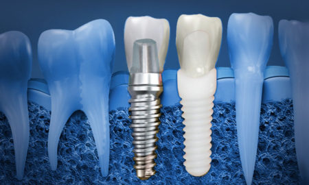 dental implants in Ahmedabad
