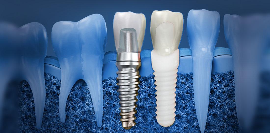 dental implants in Ahmedabad