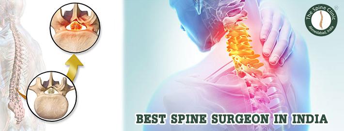 best-spine-surgeon-in-India-2