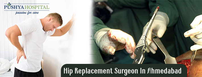 Best Knee Replacement Surgeon in Ahmedabad