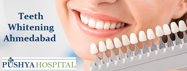 Teeth Whitening In Ahmedabad